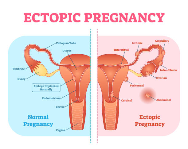 ectopic pregnancy diagram body normal pregnancy diagram