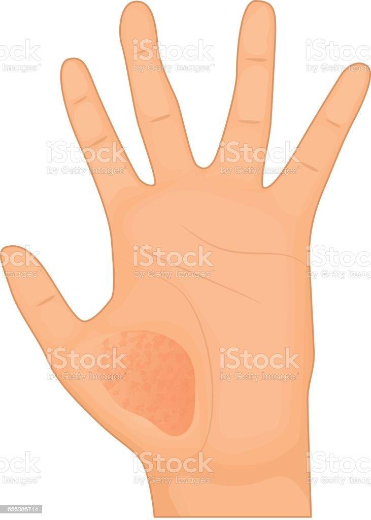 Eczema on hand. Skin disease vector illustration vector art illustration