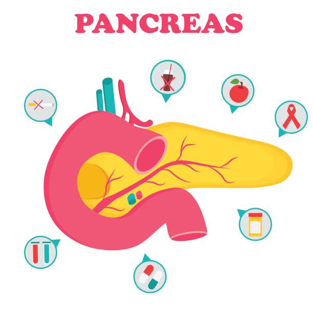 Educational medical poster with pancreas organ Educational medical poster with pancreas organ and icons bile stock illustrations