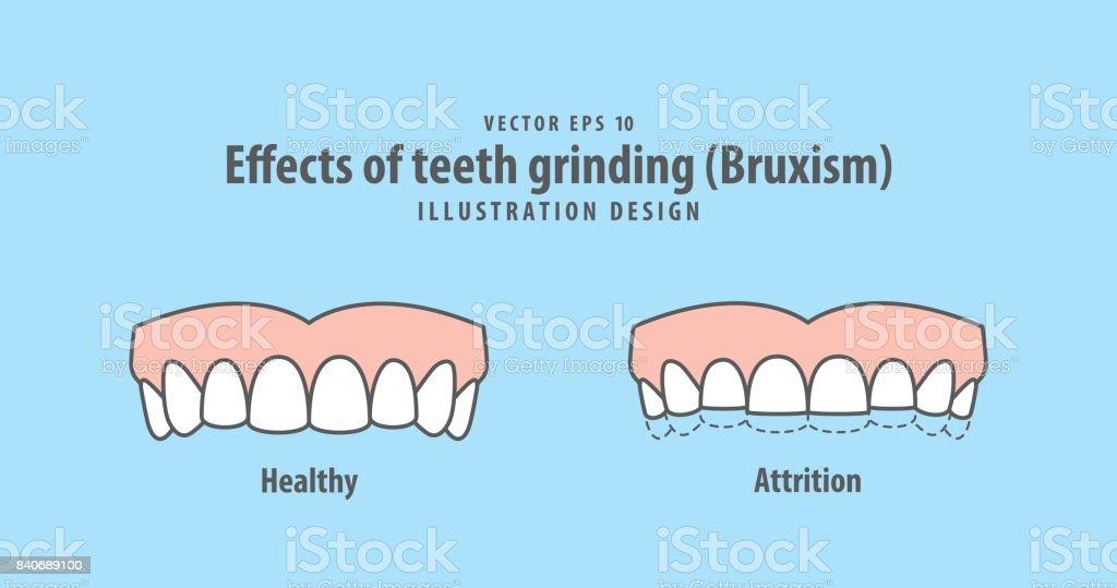 Effects of teeth grinding (Bruxism) illustration vector on blue background. Dental concept. vector art illustration