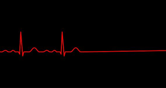 Ekg line. Heart stops beating. Death.
