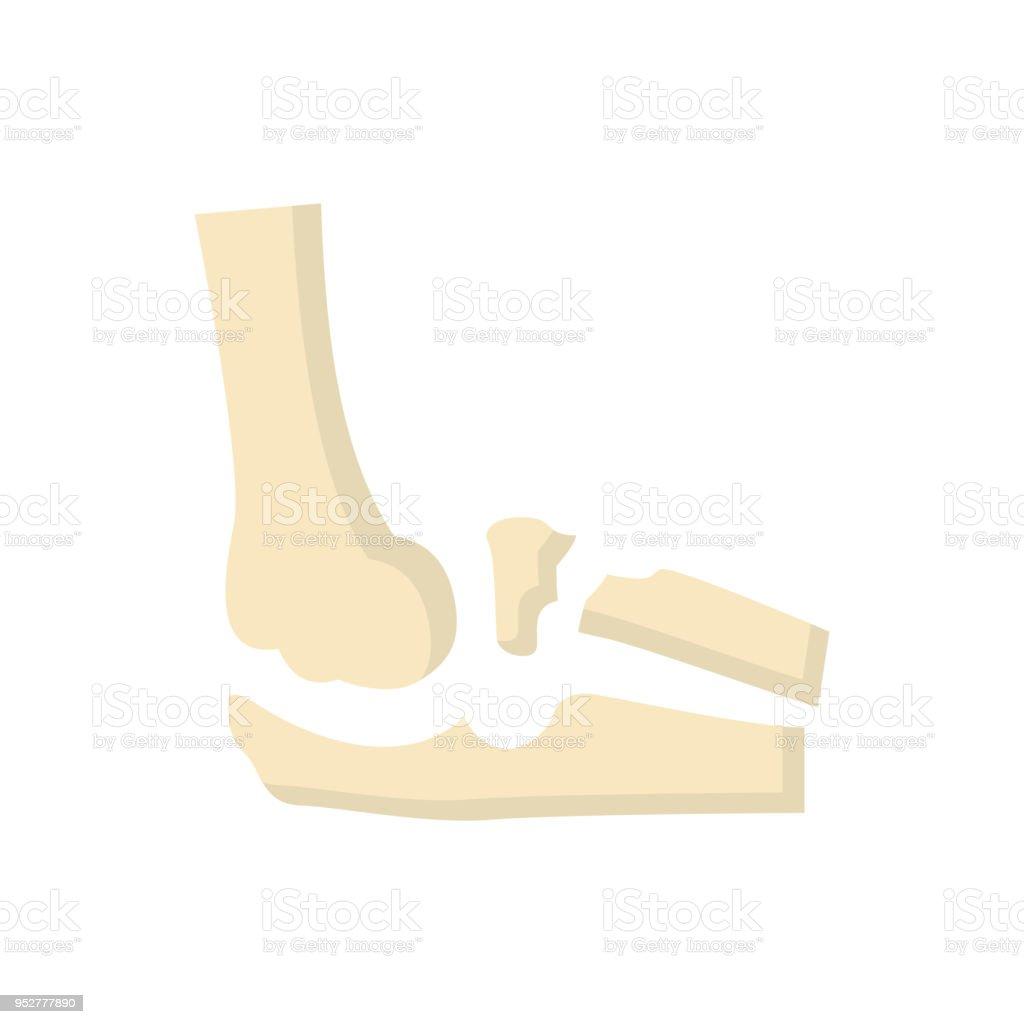 Ausgezeichnet Ellenbogen Anatomie X Ray Zeitgenössisch - Anatomie ...