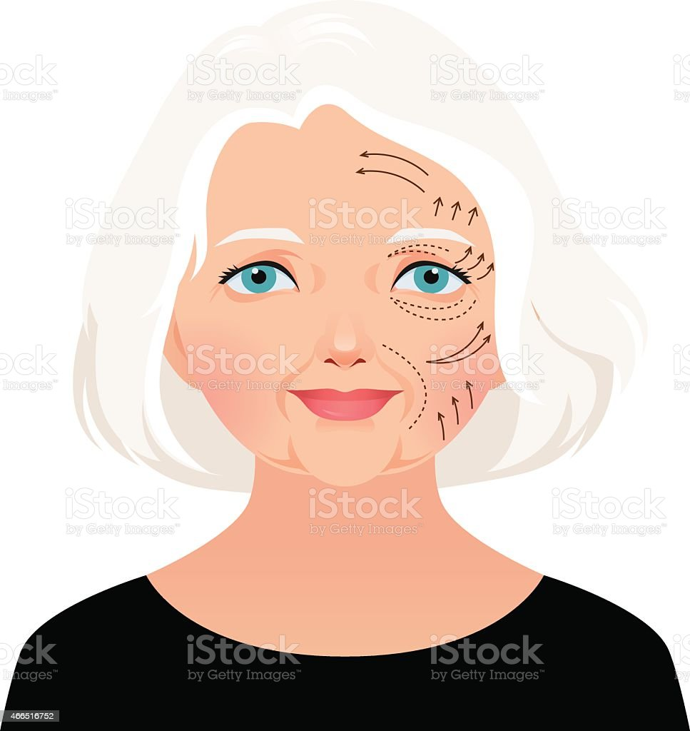 Elderly woman cosmetic rejuvenation of the face lift vector art illustration