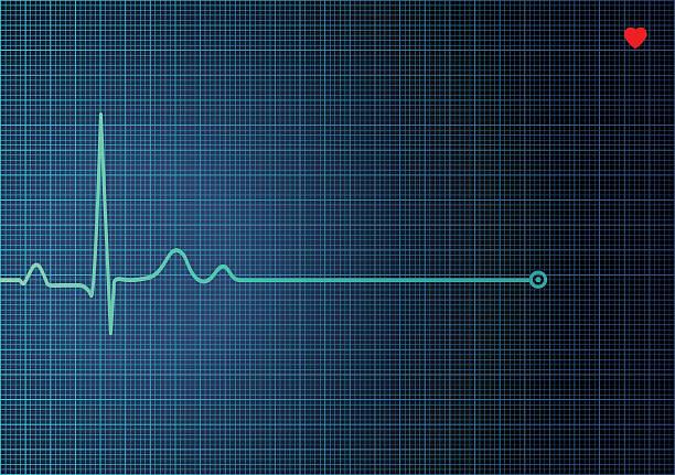 Electrocardiogram EKG EKG Heart Monitor. PDF file is included. taking pulse stock illustrations