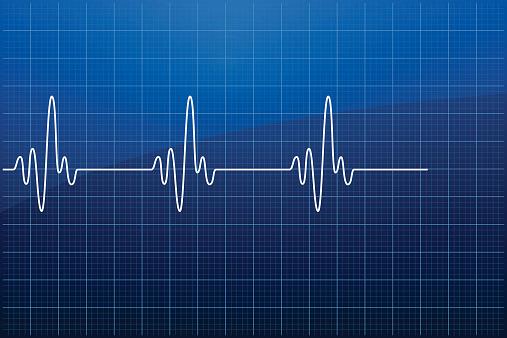 Electrocardiogram EKG - VECTOR