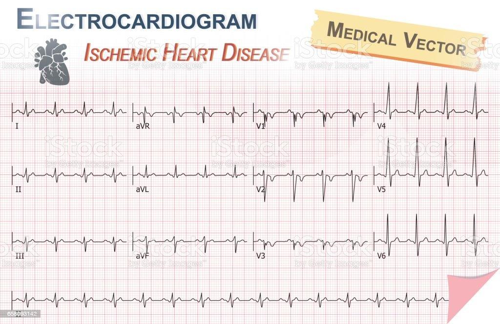 Electrocardiogram ( ECG , EKG ) of Ischemic Heart Disease vector art illustration