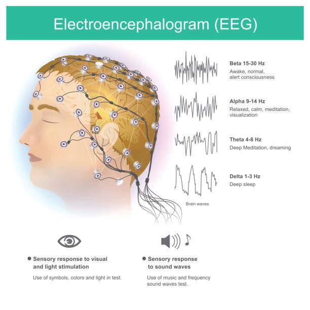 illustrazioni stock, clip art, cartoni animati e icone di tendenza di electroencephalogram (eeg). - elettrodo