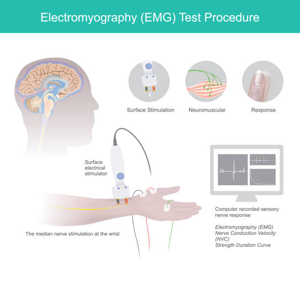 electromyography test procedure. - physical therapy stock illustrations