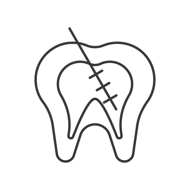 stockillustraties, clipart, cartoons en iconen met endodontic of wortelkanaal behandeling overzicht pictogram - wortelkanaal