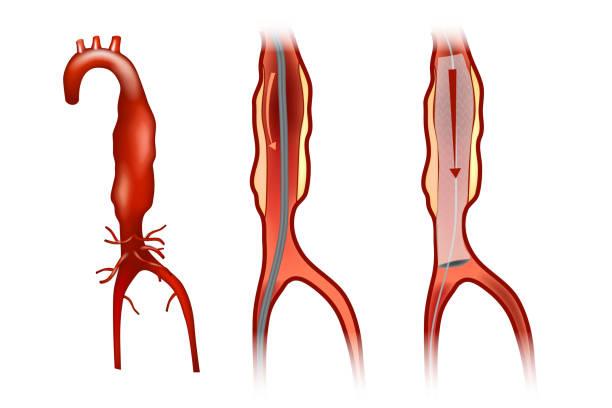 Endovascular aneurysm repair vector art illustration