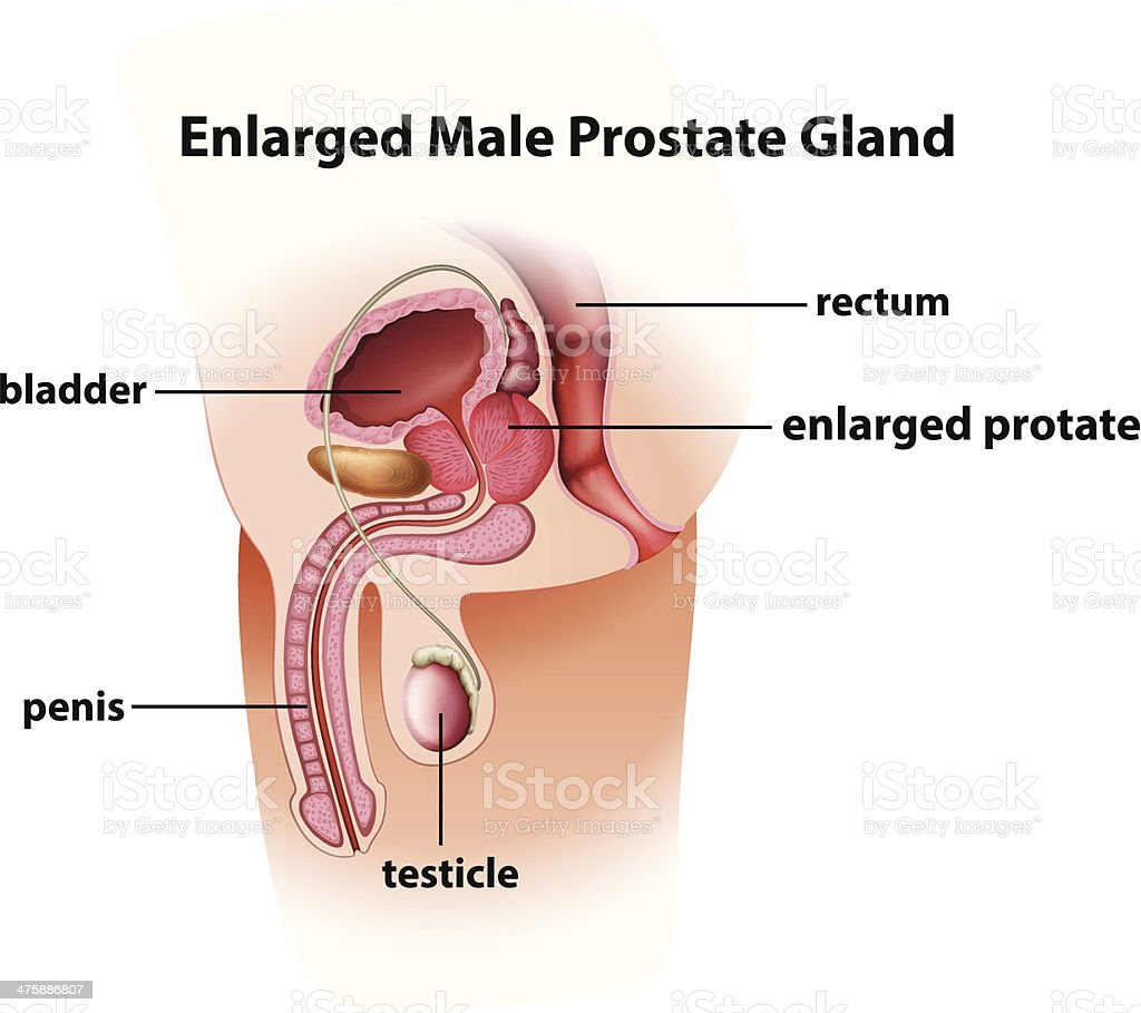 Enlarged Male Prostate Gland Stock Vector Art & More Images of ...