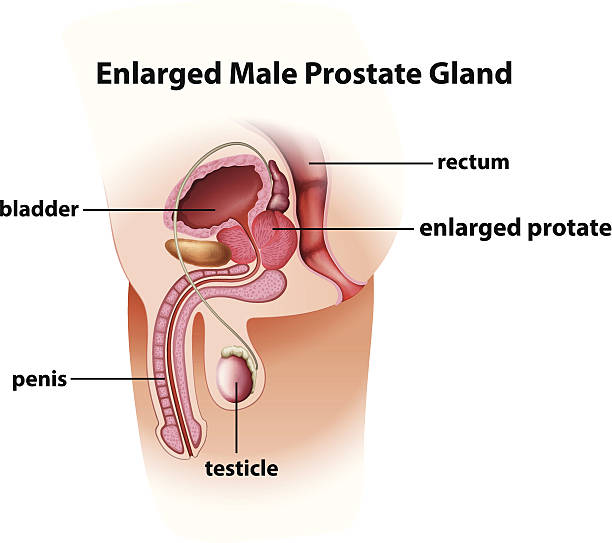 a study of the prostate gland It is important that a man with symptoms of an enlarged prostate be checked for the is causing the enlargement of the prostate gland a urine flow study.