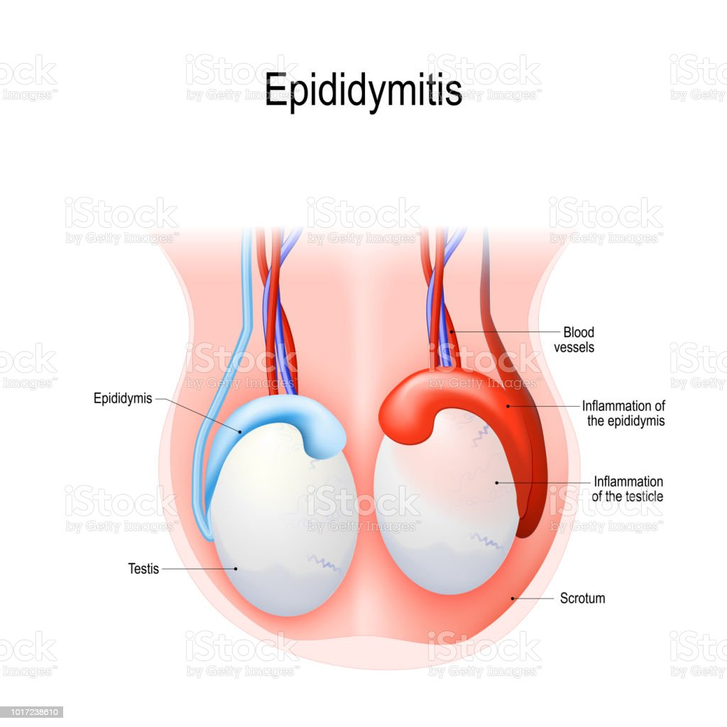 Epididymitis vector art illustration
