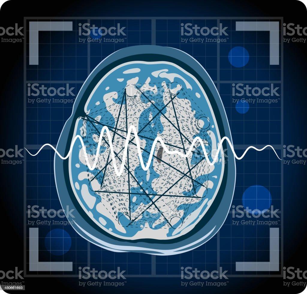 MRI - Epilepsy vector art illustration
