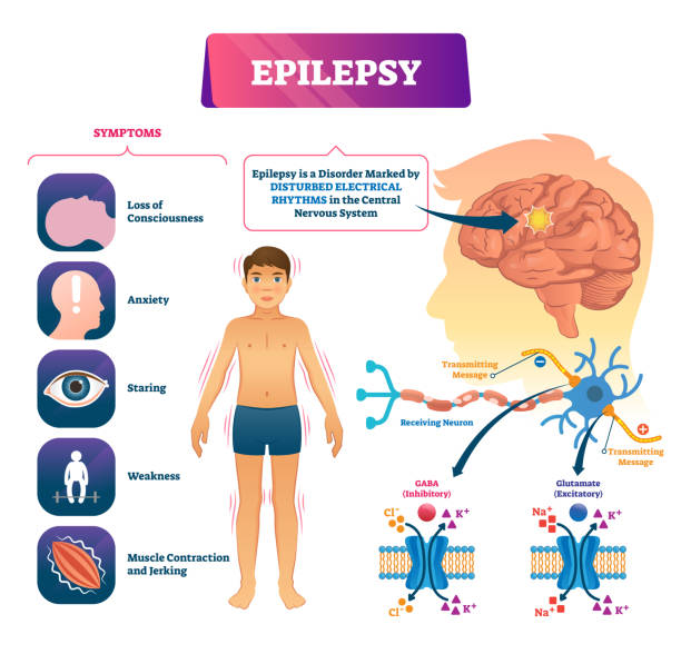 Epilepsy vector illustration. Labeled sick CNS disorder educational scheme. Epilepsy vector illustration. Labeled sick CNS disorder educational scheme. Patient health disease diagnosis research diagram. Problem with disturbed electrical rhythms. Anatomical symptoms and causes amino acid stock illustrations