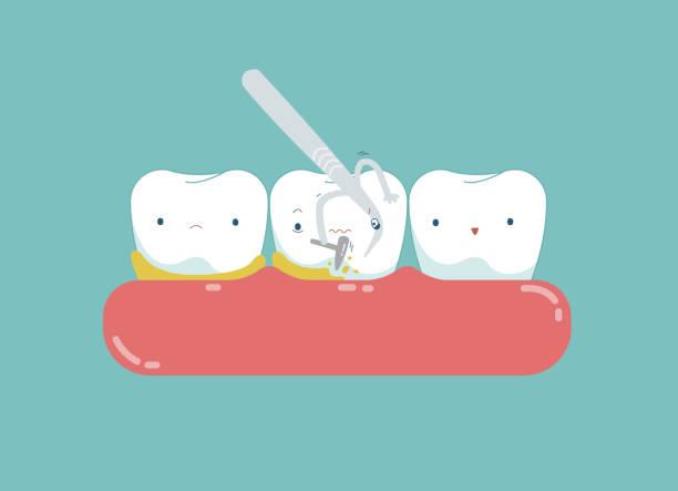 bildbanksillustrationer, clip art samt tecknat material och ikoner med utrustning av dental är rengöring tand för bra friska. - tandblekning