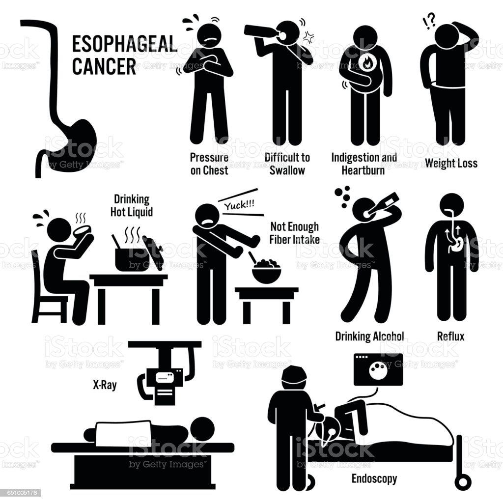 Symptômes De Cancer De Loesophage Oesophage Gorge Provoque Des ...