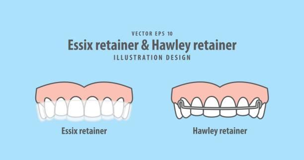 essix-retainer & hawley retainer illustration vektor auf blauem hintergrund. dental konzept. - manschetten stock-grafiken, -clipart, -cartoons und -symbole