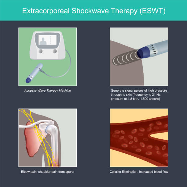 extracorporeal shockwave therapy. - physical therapy stock illustrations