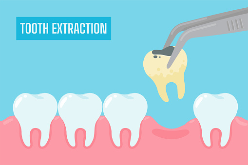 Extraction of teeth. Cartoon yellow teeth with tartar and plaque removed from the oral cavity.