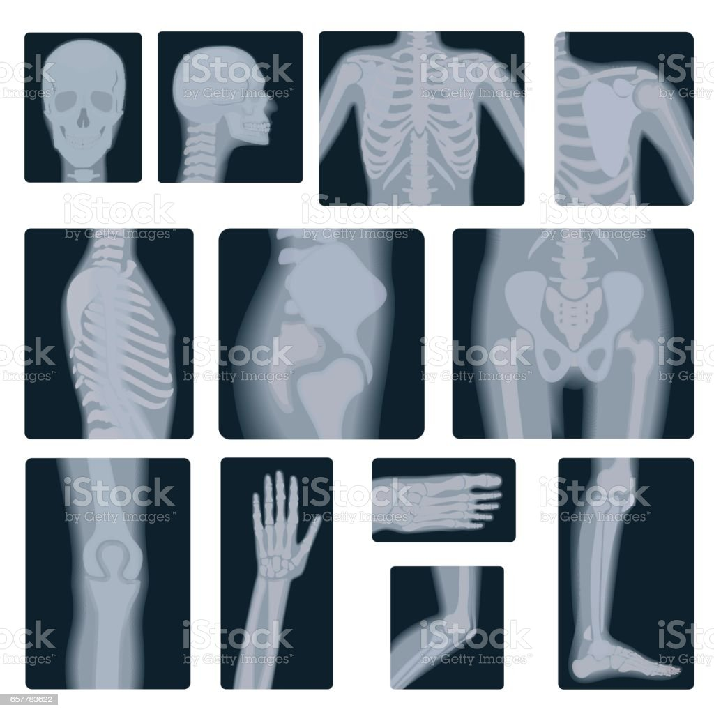 Extreme quality realistic vector collage set of many X-rays shots. X-ray multiple part of adult people. vector art illustration