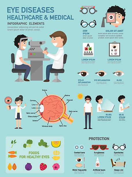 ilustraciones, imágenes clip art, dibujos animados e iconos de stock de ojo enfermedades &  infografía médica de atención médica - optometrista