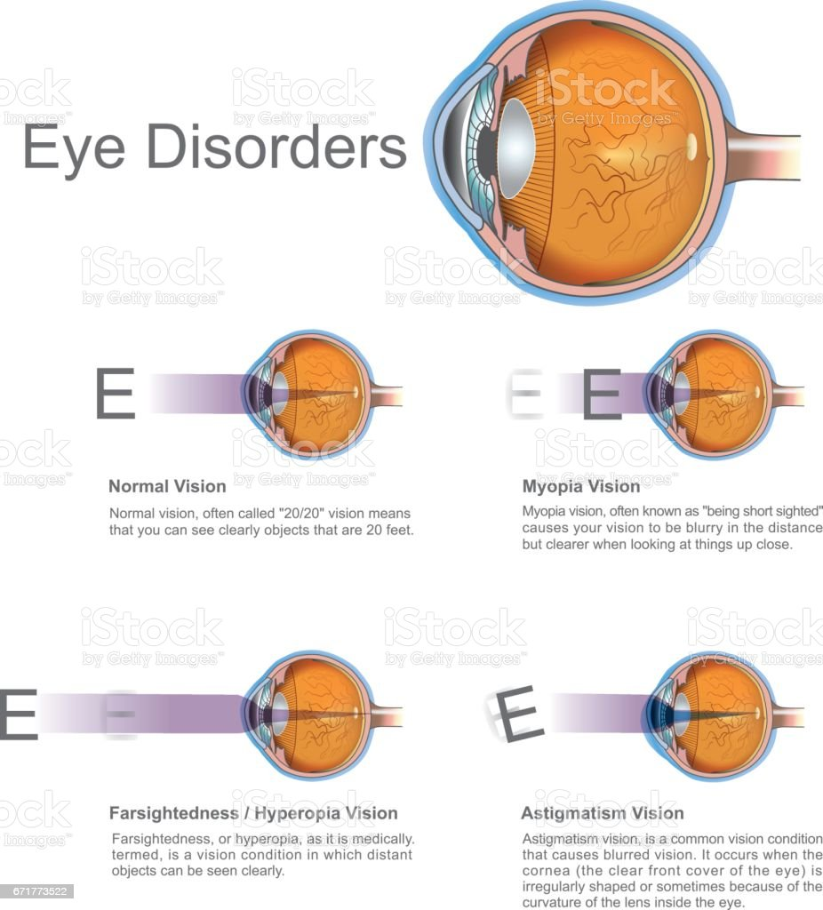 Eye disorders. vector art illustration