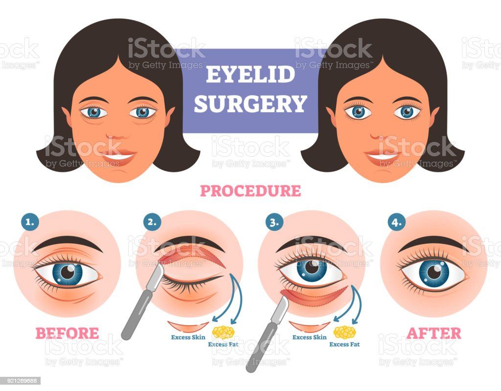 Eyelid surgery procedure before  after illuatration with main steps. Excess skin and fat removal. vector art illustration