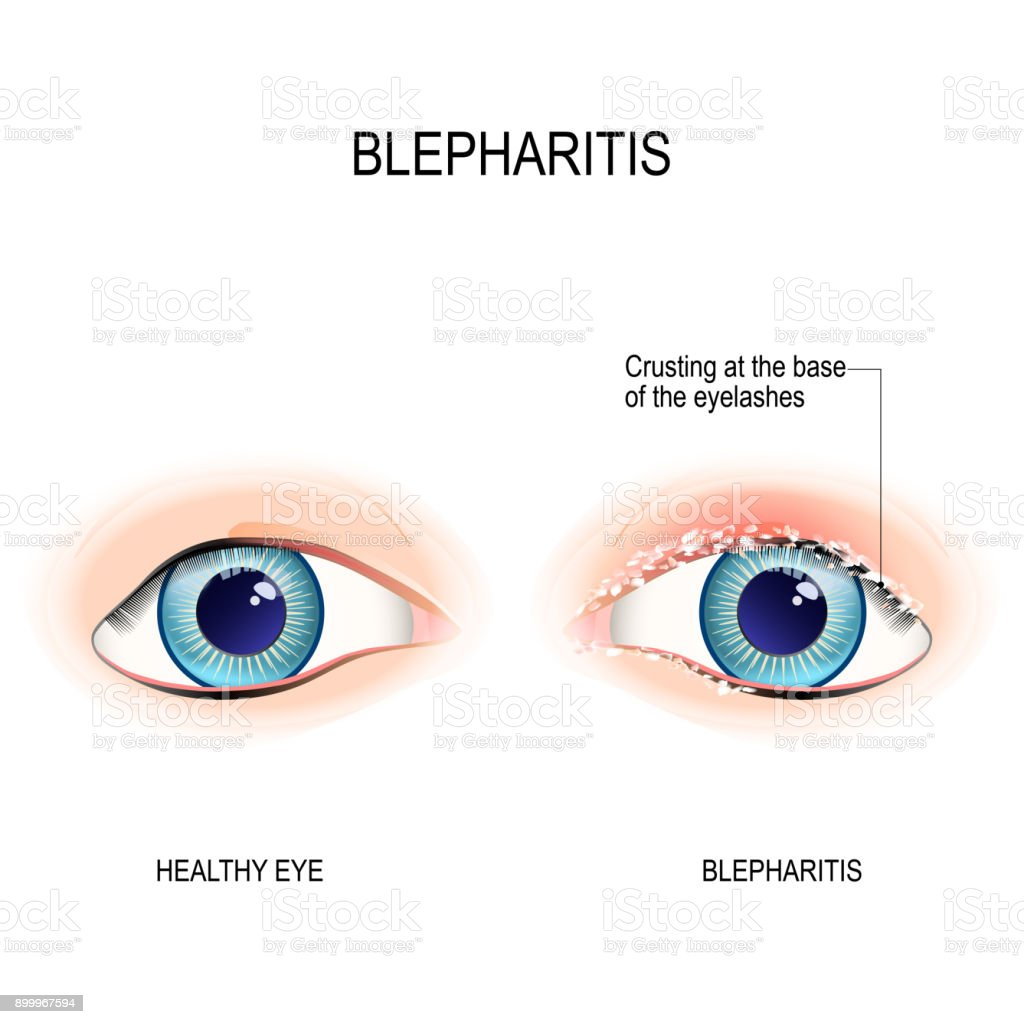 Eyes Of Human Blepharitis Crusting At The Eyelid Margins Stock ...
