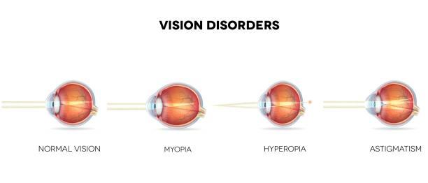 myopia fotó A Bates rendszer látásának helyreállítása