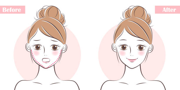 face about plastic surgery woman face before and after plastic surgery human jaw bone stock illustrations