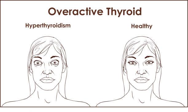 Gesicht einer erwachsenen Frau, die mit den Symptomen einer Hyperthyreose. – Vektorgrafik