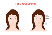 Facial nerve paralysis. Therapy, and Reanimation Surgery. Bell's palsy. vector illustration for medical and science use