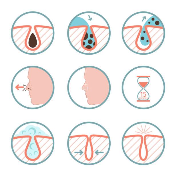 ilustrações, clipart, desenhos animados e ícones de ícones de tratamentos faciais. tratamento de doenças de pele, remoção de sebo e poros limpeza ilustração vetorial - limpando rosto