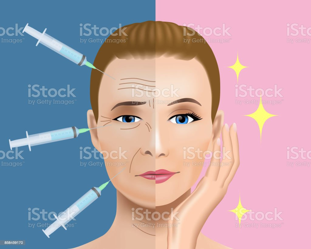 Facial wrinkles treatment before after. cosmetic surgery. woman facial treatment concept. vector art illustration