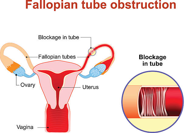 Fallopian tube obstruction Fallopian tube obstruction or Blocked fallopian tubes. A major cause of female infertility.  Uterus and uterine tubes. Human anatomy. female reproductive system. Vector diagram. fallopian tube stock illustrations
