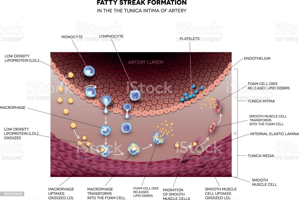 Fatty streak formation in the artery vector art illustration