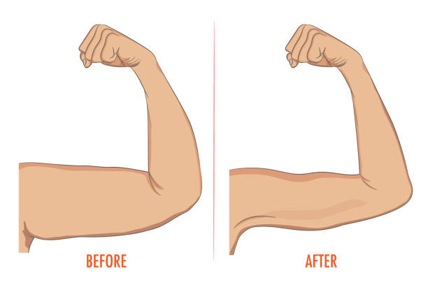 Female biceps before and after sport. Arms showing progress afte vector art illustration