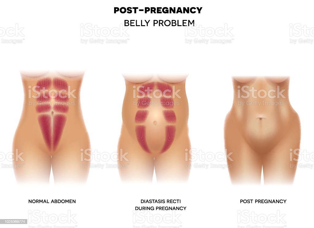 Ilustración de Cuerpo De La Mujer Antes Del Embarazo Durante El ...