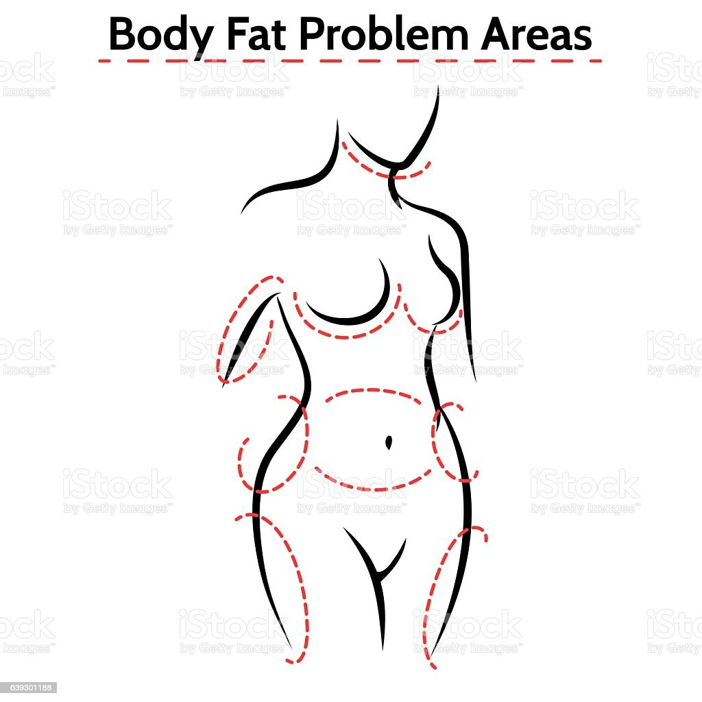 Female body fat problems areas poster vector art illustration