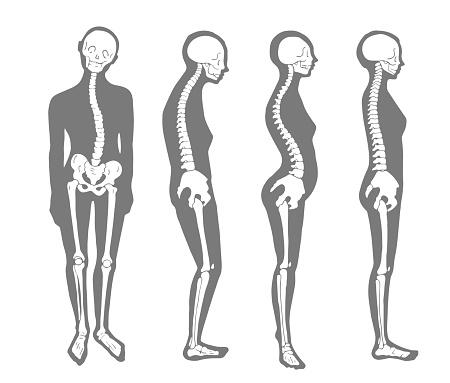 Female correct and bad skeleton