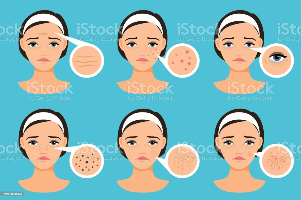 Female face with skin problems vector art illustration