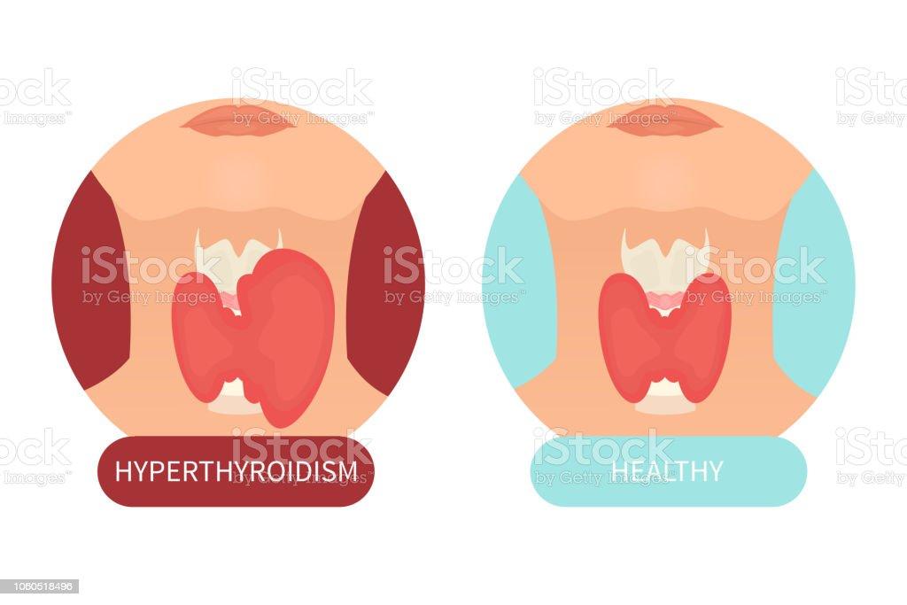 Female healthy thyroid and its disorder векторная иллюстрация