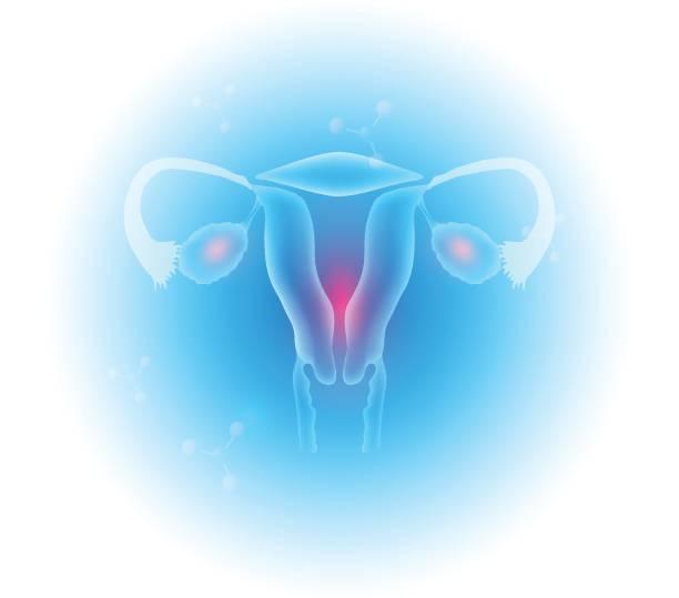 weiblichen geschlechtsorgane - pcos stock-grafiken, -clipart, -cartoons und -symbole