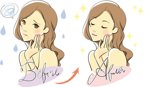 illustrations, cliparts, dessins animés et icônes de soins de la peau féminine - femme tache de rousseur