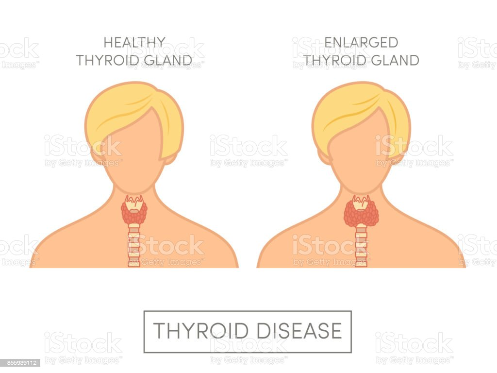 Female with normal and enlarged thyroid gland vector art illustration