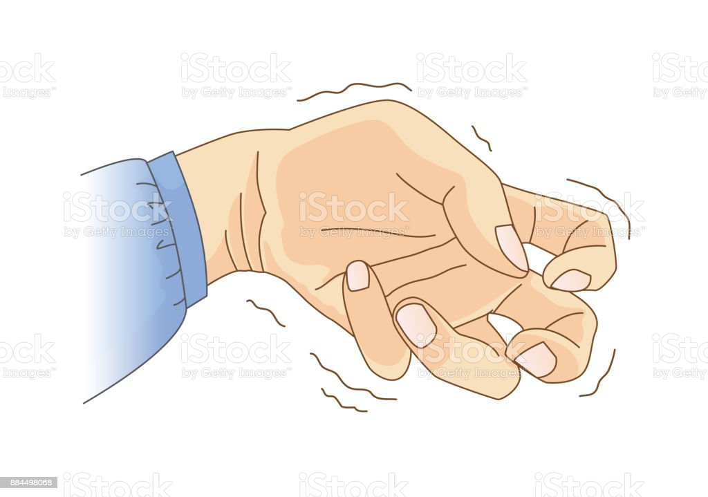 Finger Und Handgelenk Beugen Und Tremor Symptom Stock Vektor Art und ...