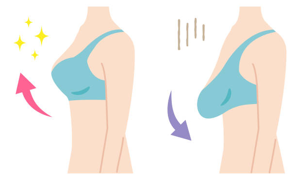 firm and sagging breasts illustration. women's beauty body care concept firm and sagging breasts illustration. women's beauty body care concept breast stock illustrations