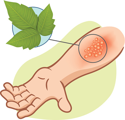 First Aid arm with allergies and rashes Poison Ivy Plant