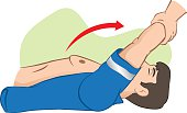 First Aid cardiopulmonary resuscitation (CPR), Sylvester